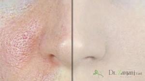آیا هزینه زیادی برای درمان، منافذ باز پوست نیاز است؟