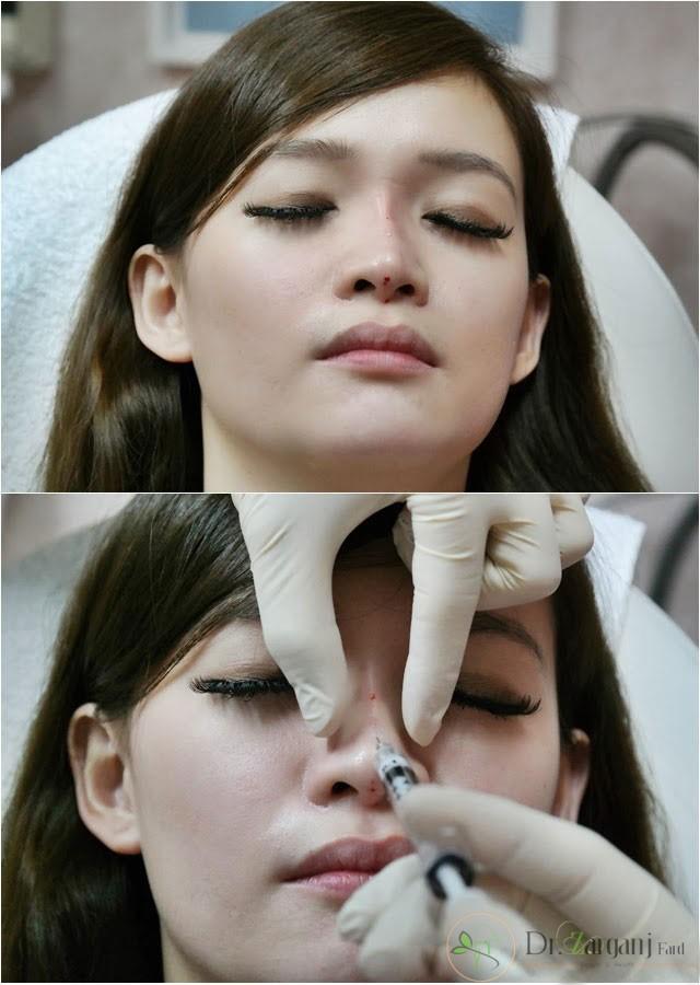 هزینه تزریق ژل بینی