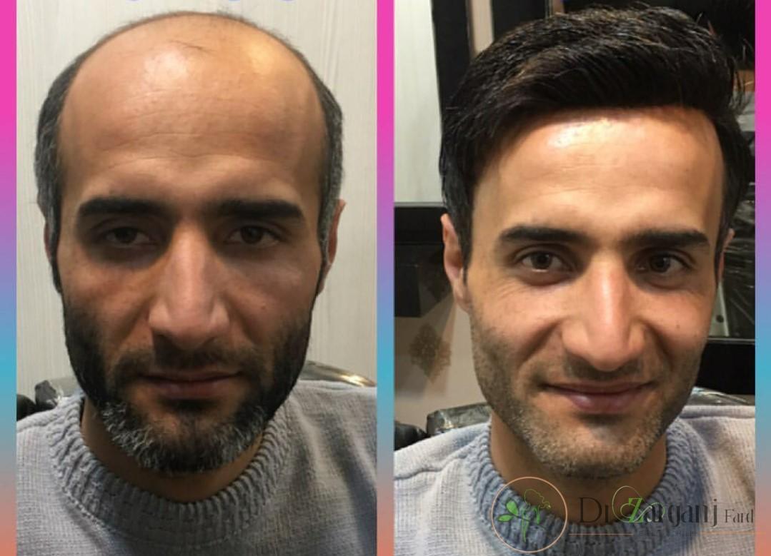 کاشت مو در این کلینیک چگونه صورت می گیرد؟