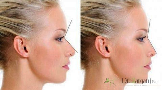 افرادی که می توانند تزریق ژل بینی را انجام بدهند