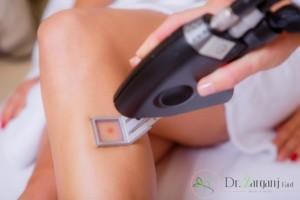 حذف مو با لیزر چه مدت زمان نیاز دارد؟
