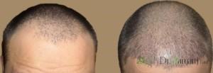 باید بدانید تعداد خاصی از افراد می توانند کاشت مو داشته باشند به طور مثال: