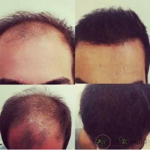 2.درباره کاشت مو در کلینیک زیبایی دکتر زرگنج چه اطلاعتی دارید؟