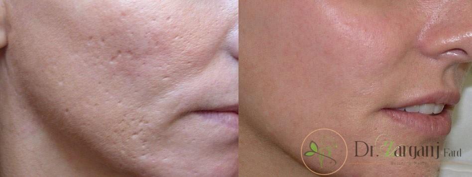 چه راه کارهای برای درمان منافذ باز پوست وجود دارد؟