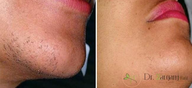 توصیه های پزشکی برای نگهداری از پوست قبل از لیزر چیست؟