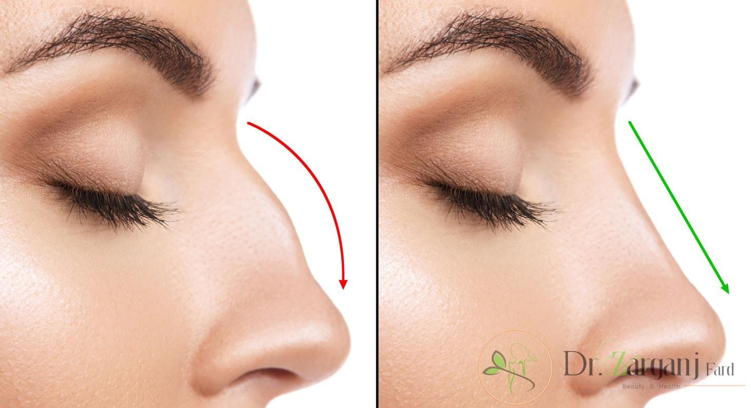 کاربرد تزریق ژل بینی