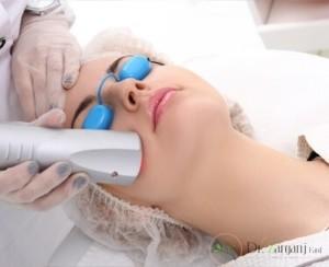 استفاده از لیزر برای از بین بردن مو ها باعث ایجاد عوارض بر روی بدن ما خواهد شد ؟