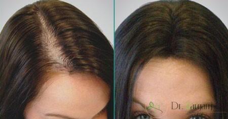 پیوند مو در کلینیک زیبایی به چه صورت انجام می پذیرد؟