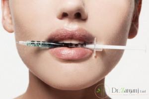 آنچه همه باید در مورد تزریق بوتاکس بدانند