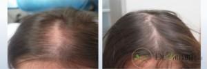 هزینه درمان مزوتراپی مو چقدر است؟