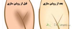 انواع روش های سفید کردن واژن