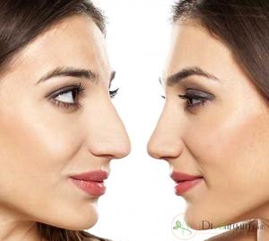 5 اصل قبل از عمل زیبایی بینی