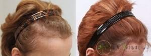 روش های درمان ریزش مو در مزوتراپی چیست؟