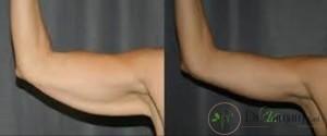 زیبایی بازو