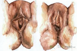 روش جراحی زیبایی کلیتوریس