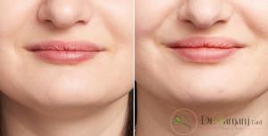 هزینه تزریق ژل لبخند به چه فاکتورهایی وابسته است؟
