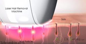 اثرات لیزر بر روی موهای زائد چگونه است؟