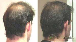 میزان تاثیر مزوتراپی در ترمیم مو چقدر است؟