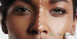 آیا روشهای خانگی برای سفید شدن پوست مفید است؟