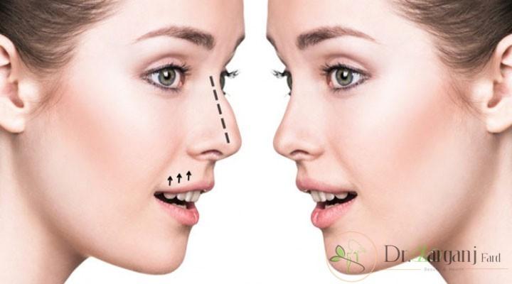 انواع لیف بینی