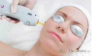 چه مواردی باید در مو وجود داشته باشد تا آماده لیزر شود؟