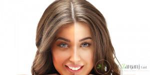 سفید کردن پوست بدن با لیزر