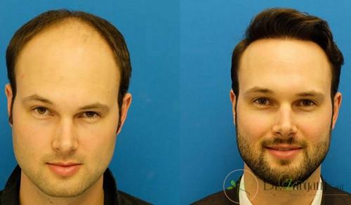 کاشت مو با موی طبیعی