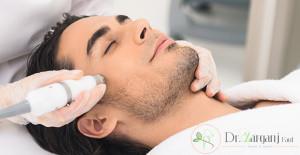 آیا لیزر موهای صورت مردان باعث سرطان و یا ناباروری میشود؟