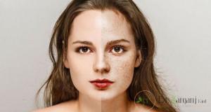 فواید لیزر پوست برای عارضه کک و مک چیست؟