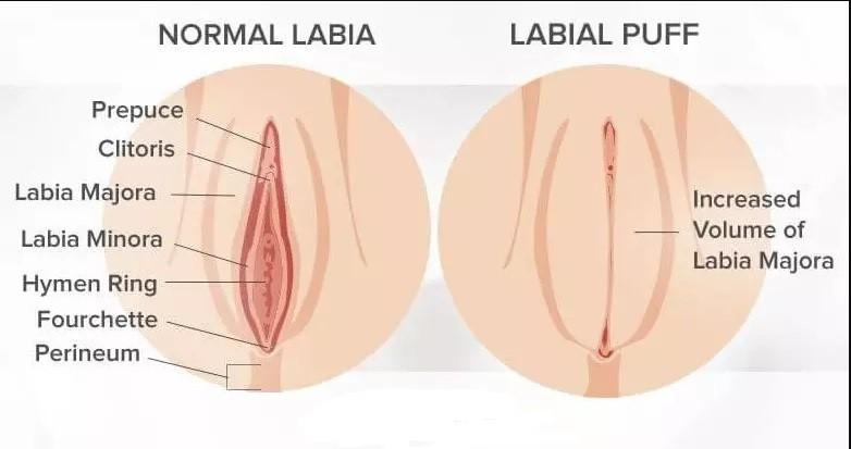 روش دوم تزریق چربی به ناحیه تناسلی