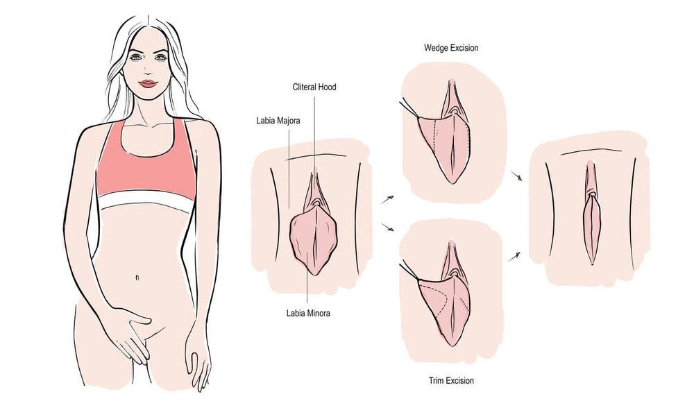 شکل ظاهری اندام تناسلی در خانم ها متفاوت است