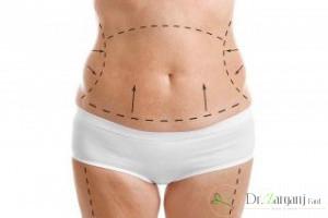 جراحی زیبایی شکم یا همان ابدومینوپلاستی چیست؟