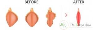 لابیا پلاستی به روش TRIM :