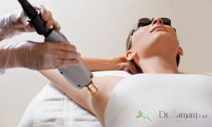 آیا لیزر موهای زاید برای بارداری و غده های لنفاوی مضر است؟