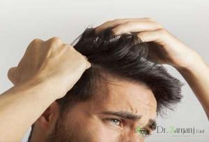 نکات قابل توجه در عمل کاشت مو با موی طبیعی