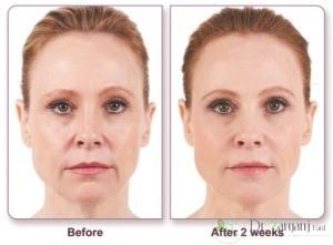 کربوکسی تراپی چگونه موجب شادابی پوست صورت می شود ؟