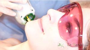 کاربردهای دیگر لیزردرمانی چیست ؟
