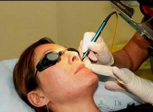 لیزر چه کاربردی در درمان ضایعات پوستی دارد؟
