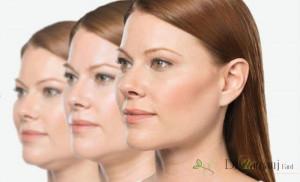 لیفت کردن صورت با استفاده از نخ سیلوئت؟