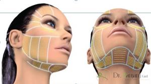 تاثیر یک دوره درمان پس از تزریق ژل پوستی چگونه است؟