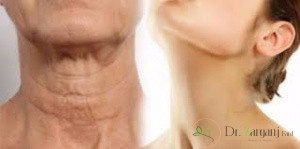 تزریق بوتاکس در گردن