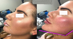افرادی که می توانند عمل زاویه سازی صورت را انجام دهند؟