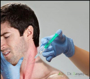 3) درمان دیستونی گردن با روش تزریق بوتاکس را شرح دهید؟