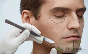 2:نحوی جراحی لیفتیگ صورت چگونه است ؟