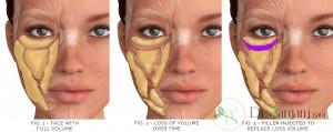 علل ایجاد سیاهی دور چشم چیست؟