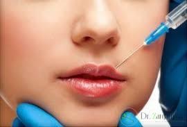 4:آیا تزریقها در دور لب انجام میشود یا در بافت خود لب می باشد ؟