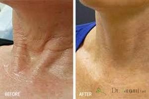 بهبود افتادگی و شل شدن پوست گردن: