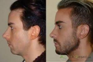 شماره 3 : زاویه دار کردن صورت با ژل، برای چه افرادی مناسب تر است؟
