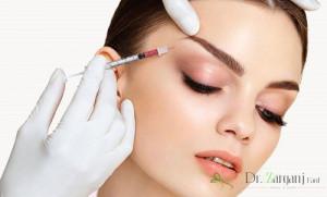 درمان پتوز ناشی ازبوتاکس