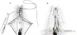 یکی از علل انجام عمل لابیاپلاستی بزرگ بودن لبه های واژن می باشد،دلیل این بزرگی چیست؟